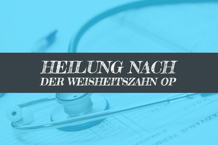 Heilung nach Weisheitszahn OP fördern - Heilungsdauer